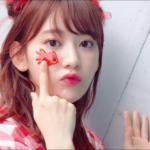 宮脇咲良の顔が変わりすぎ!整形外科の場所はどこ?韓国でも大人気?